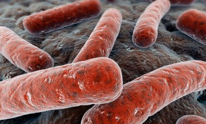 Caso di tbc a Savona