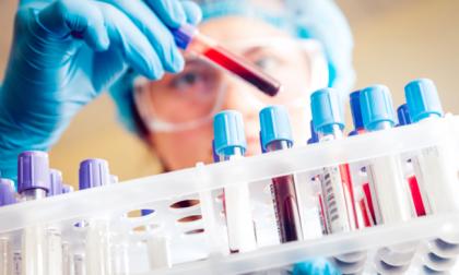 Tumore al colon: Asl chiama 5.000 sanremesi per prevenzione, ma mancano le provette
